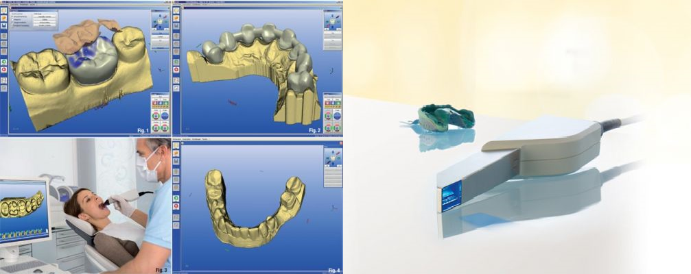 реставрация зубов в Сочи