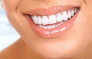 Чистка зубов в Сочи