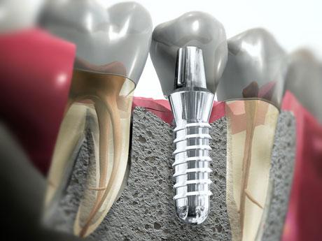 протезирование зубов цены