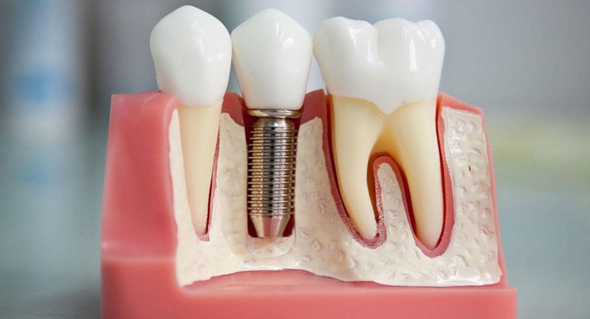 протезирование зубов в Сочи