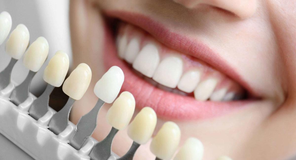 Эстетическая стоматология в Сочи