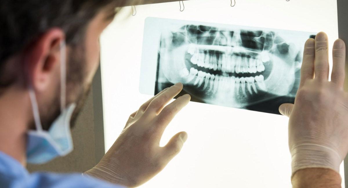 диагностика зубов в Сочи