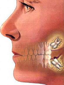 удаление верхнего зуба мудрости