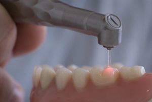 лечение зубов лазером в Сочи
