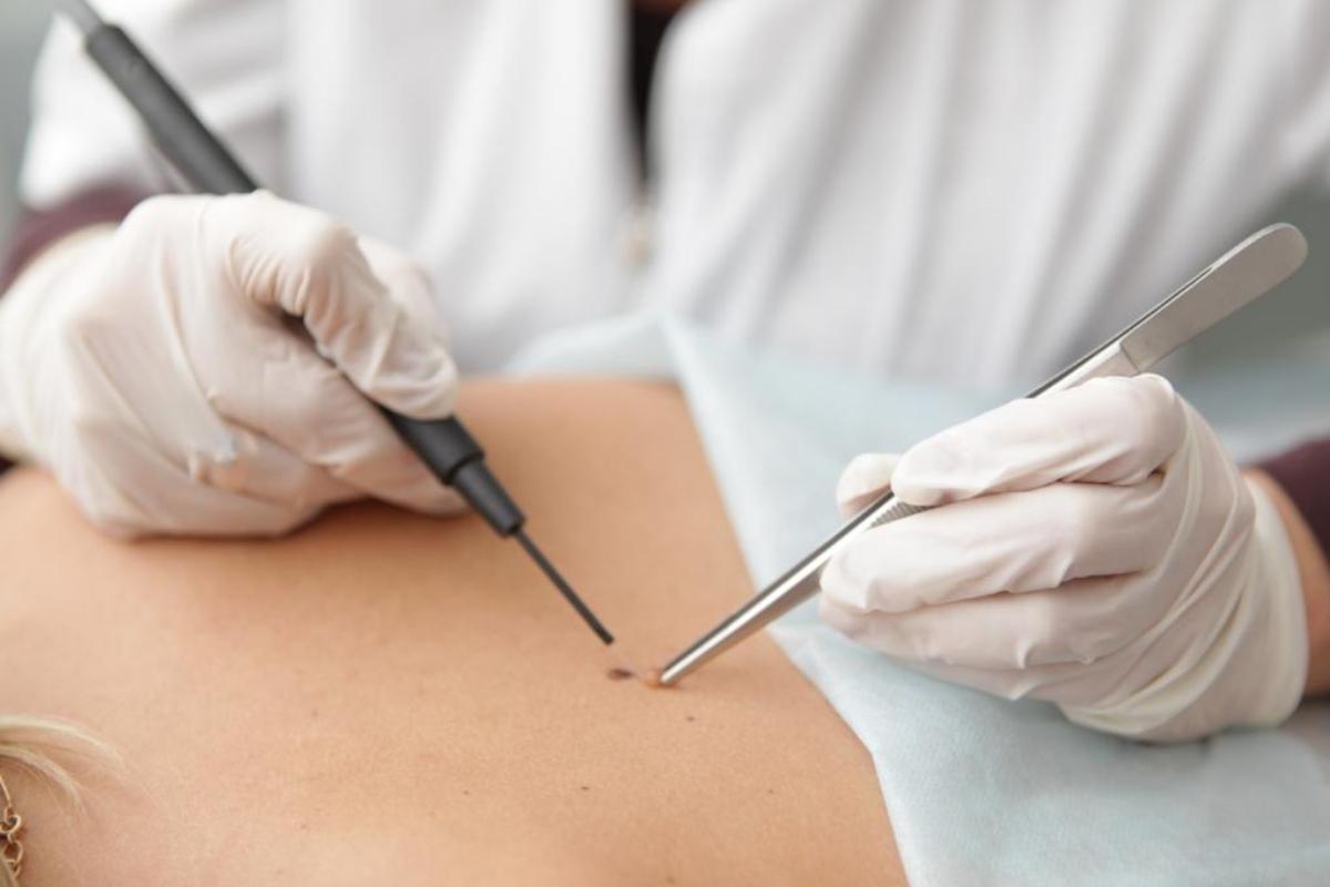 Лечение папиломовируса в Сочи