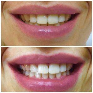Отбеливание зубов в Сочи